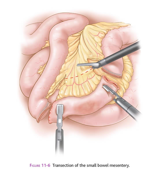 enterectomy