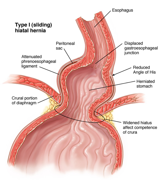 laparoscopic repair of hiatal hernia, Cephalic Vein