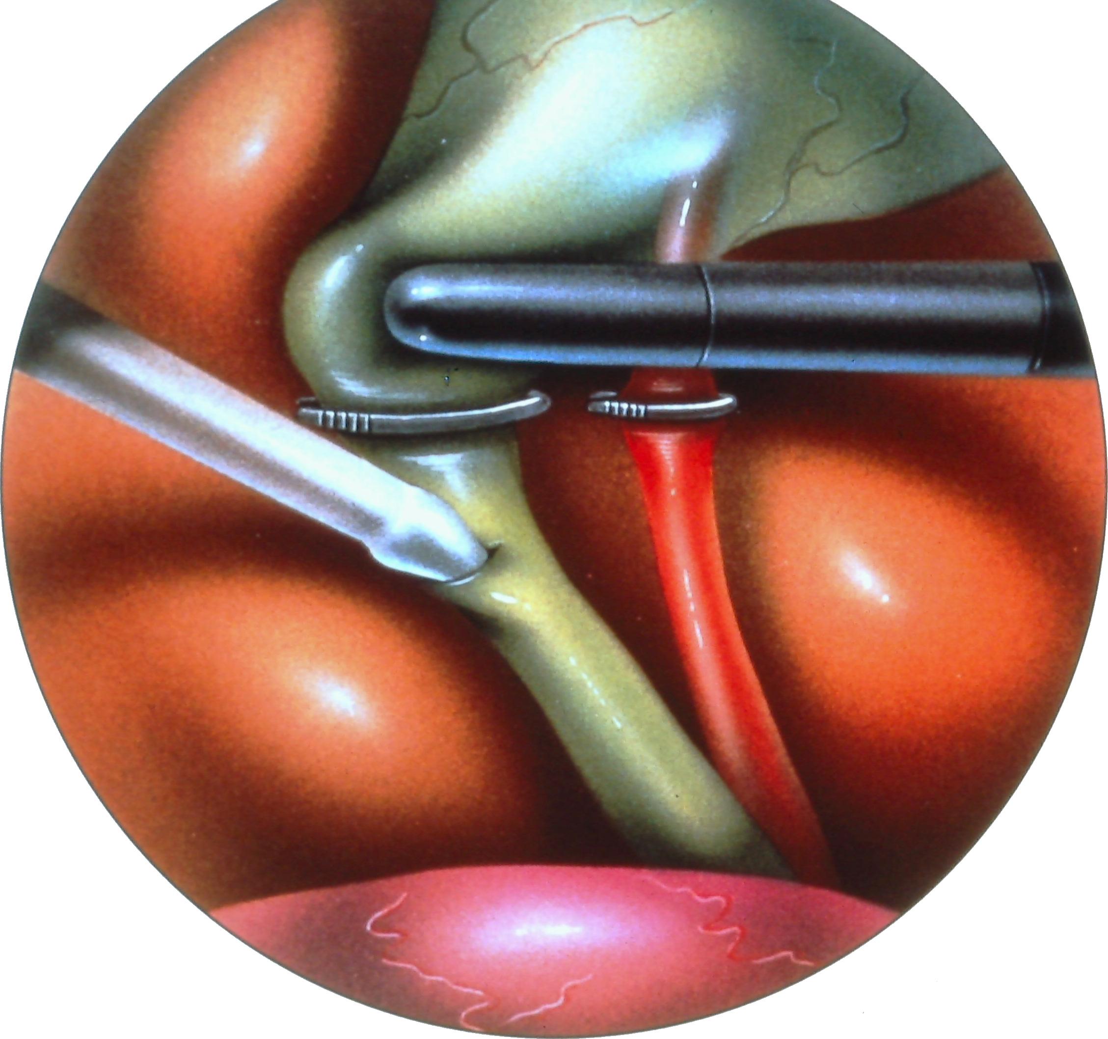 laparoscopic-common-bile-duct-exploration-1