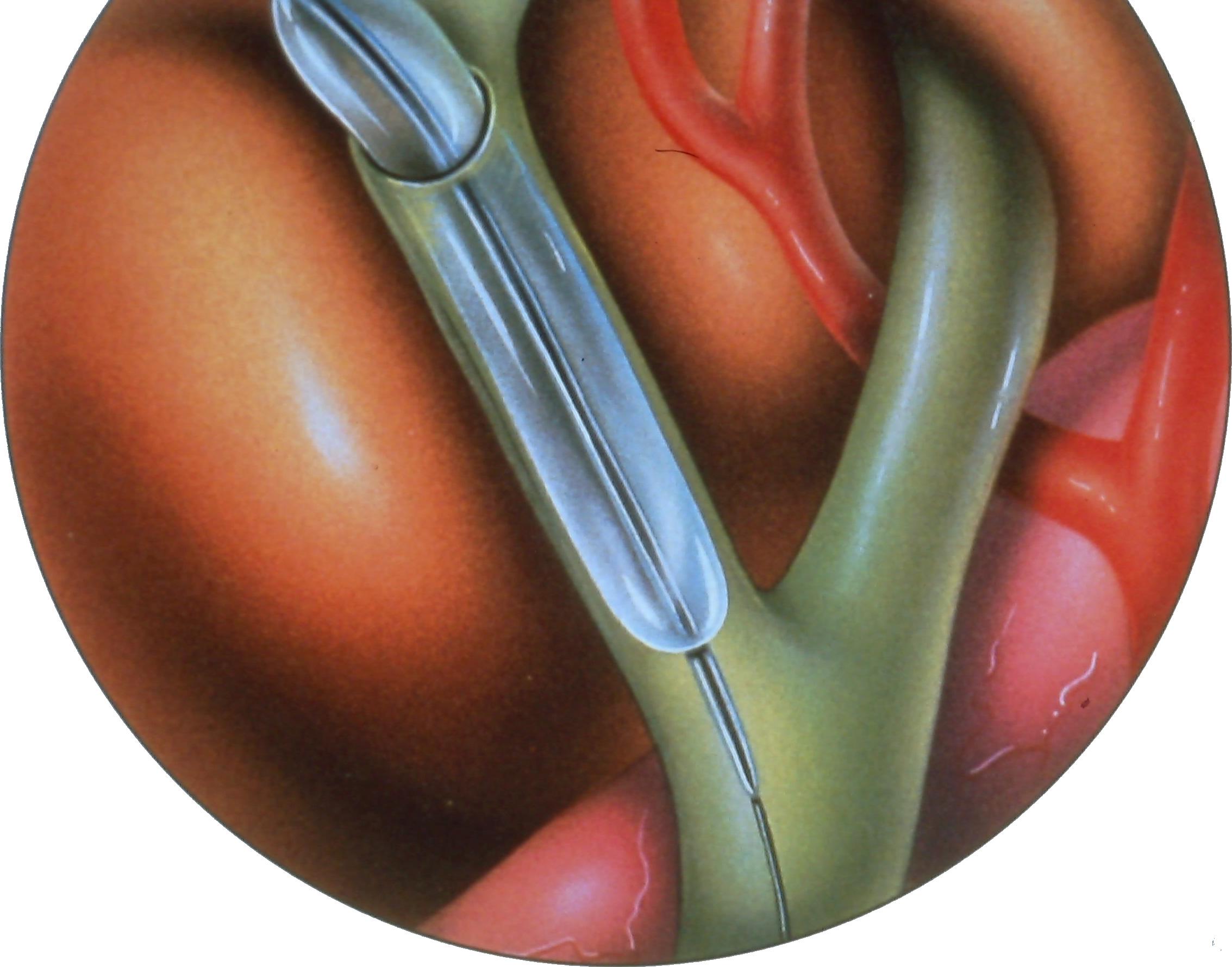 laparoscopic-common-bile-duct-exploration-2