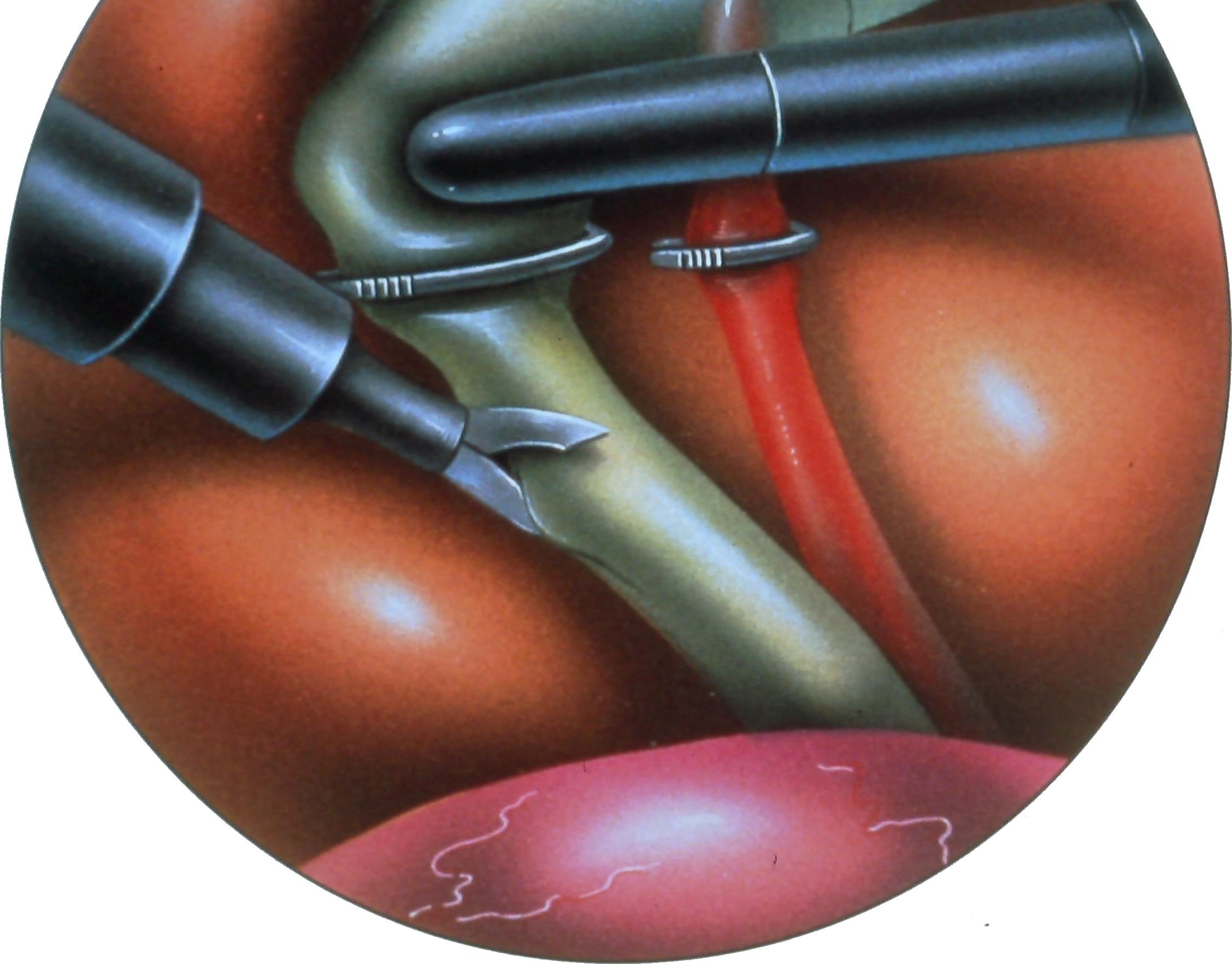 laparoscopic-common-bile-duct-exploration