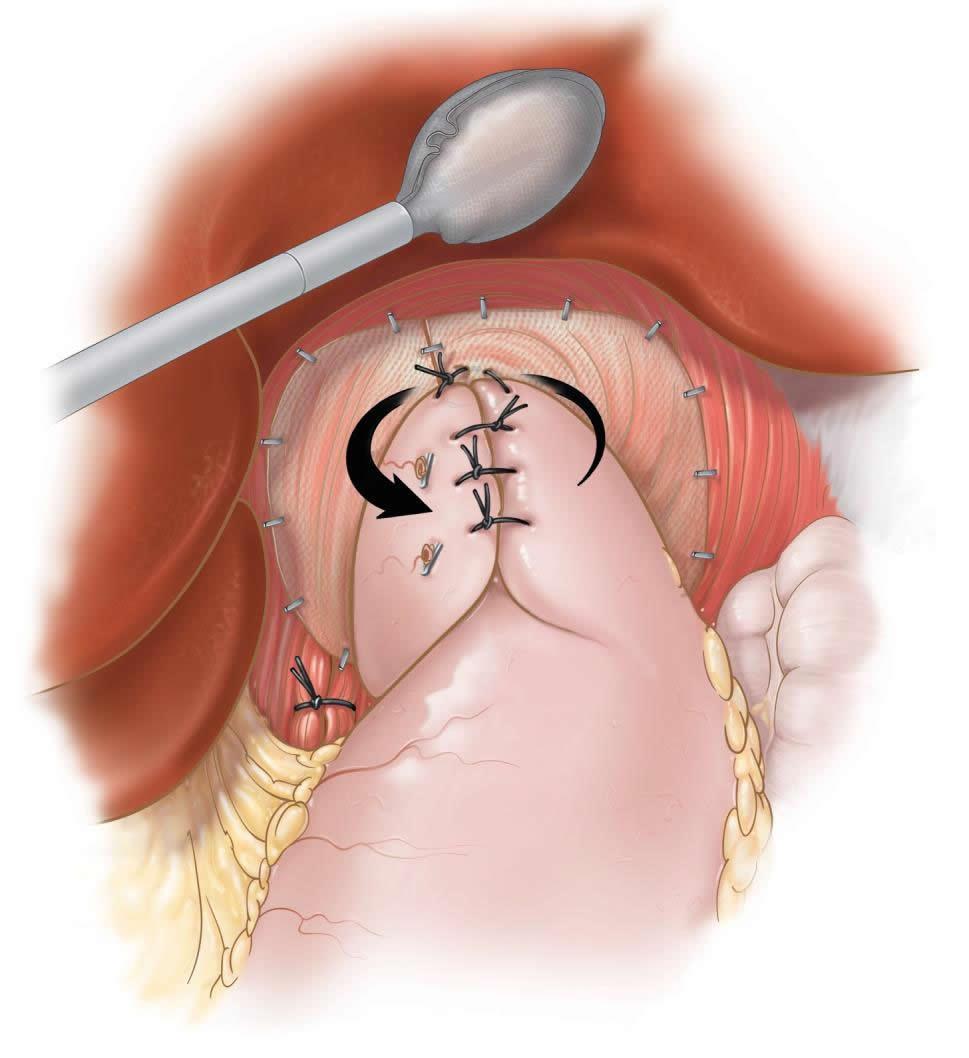 laparoscopic-fundoplication