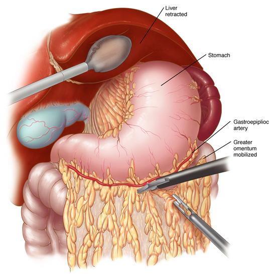 laparoscopic gastrectomy, Skeleton