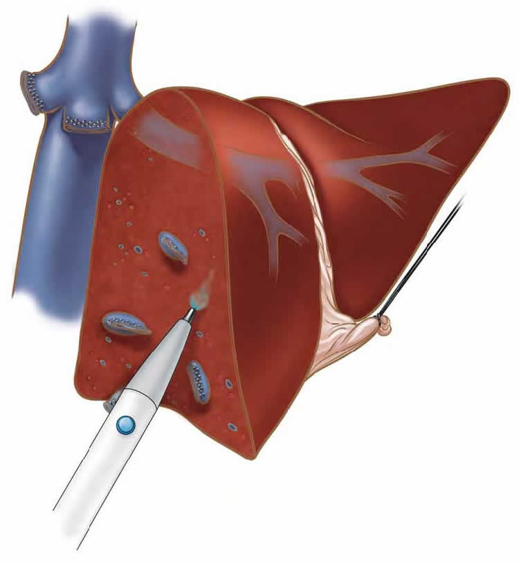 laparoscopic-liver-biopsy-hepatectomy-b