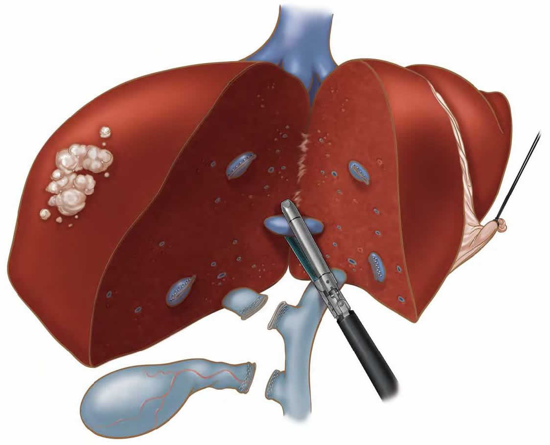 laparoscopic-liver-biopsy-hepatectomy