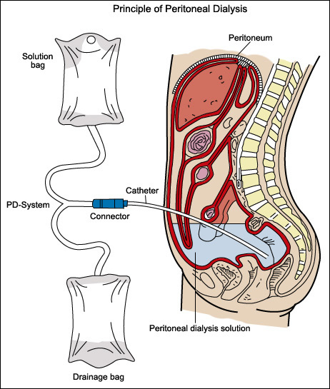 laparoscopic-peritoneal-dialysis-catheter