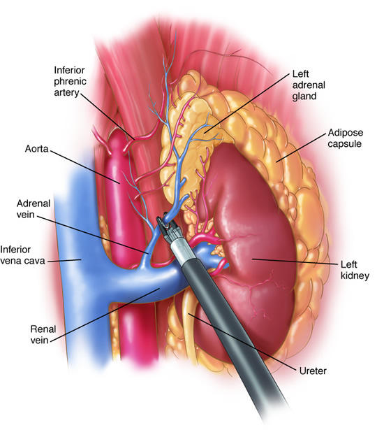 laparoscopic_adrenalectomy3