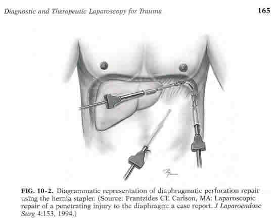 Laparoscopic Diaphragmatic Hernia Repair