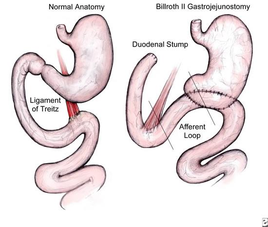 laparoscopic_gastrojejunostomy